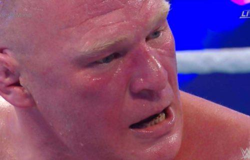 Universal Champion Brock Lesnar has a shockingly nasty set of teeth