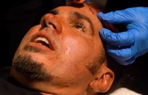 Matt Hardy gets 13 stitches backstage after scary spot on AEW Dynamite