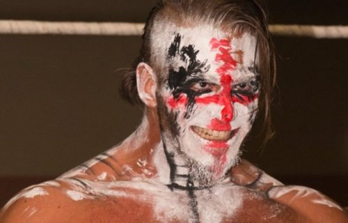 Crazzy Steve is blind; reveals why he wanted to keep it a secret